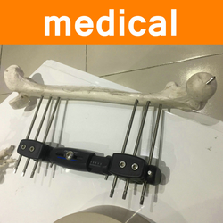 PEEK Parts for Medical Equipment Industry External Fixation X-ray Permeability High Strength Special Medical Material