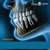 Dental Iplant